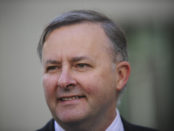 Anthony Albanese MP
